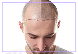 Scalp Micropigmentation | Warwick, NY | Clear Choice Beauty