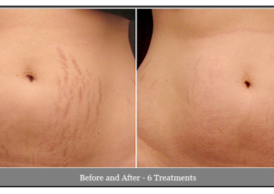 Stretch Mark Treatments - Skin Care Spa Warwick NY