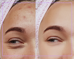 Permanent Cosmetic Makeup | Warwick NY