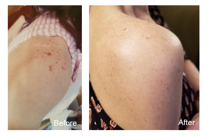 Laser Services - Sun Spot Removal - Clear Choice Beauty